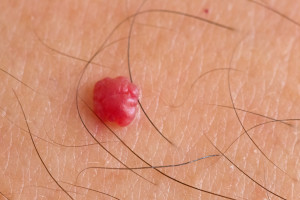 huidkliniek linskens bloedblaasjes