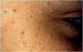 huidkliniek-linskens-milia
