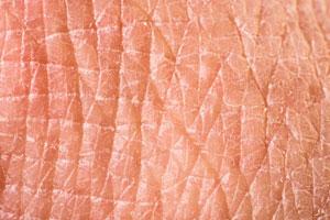 huidkliniek-linskens-zeer-droge-huid